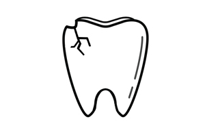 Lakeview Chicago Dentist | I Chipped a Tooth! What Can I Do?